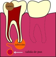fistula_dental copy